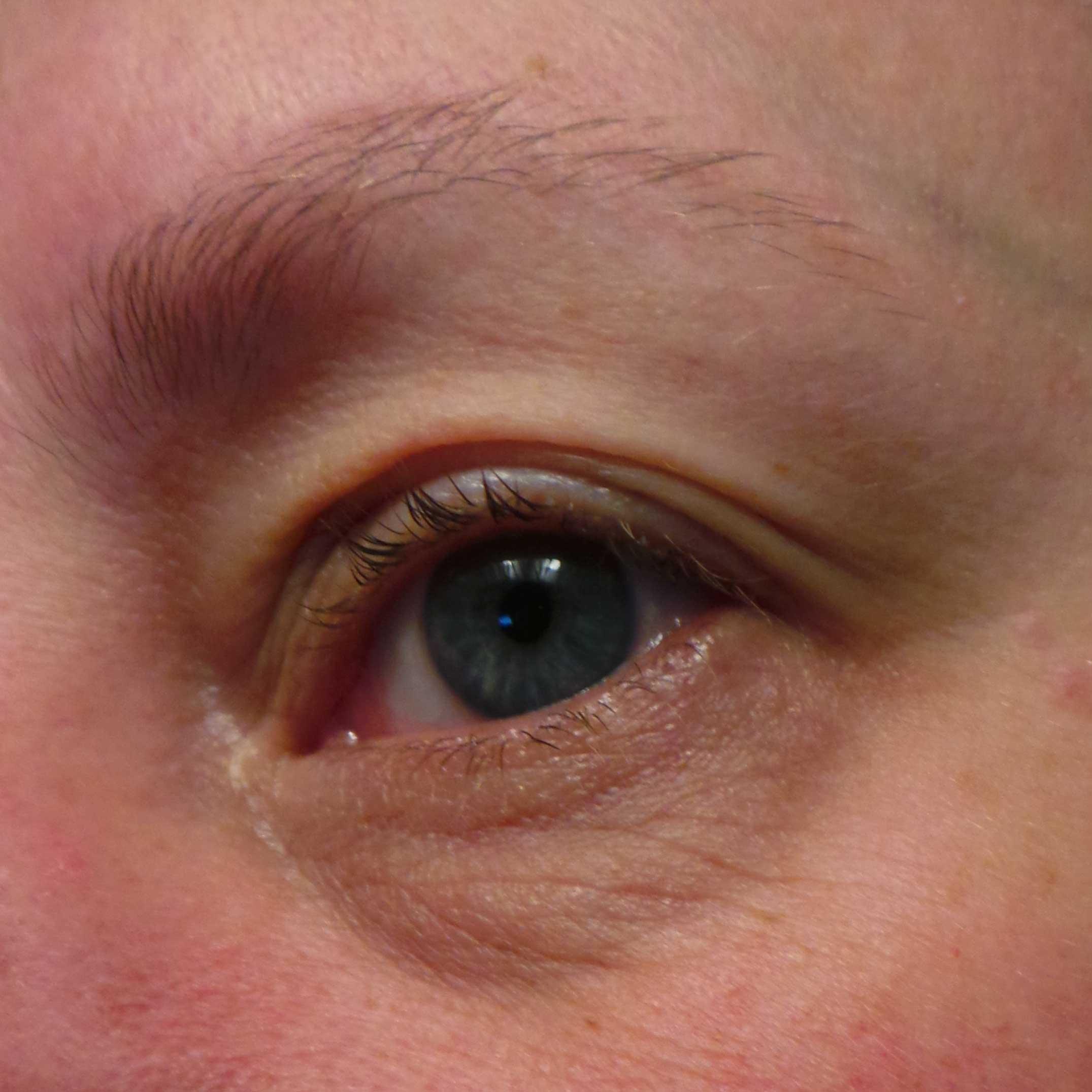 allergie mascara symptomen